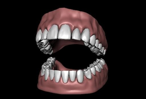 Teeth-SET.jpg